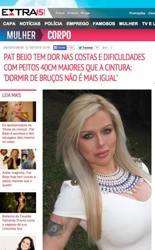 Jornal Extra (Rio de Janeiro): Dificuldades com seios muito grandes. O caso da apresentadora Pat Beijo.