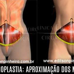 Reaproximação dos músculos na abdominoplastia